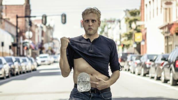 Matthew Mewhorter with ostomy bag