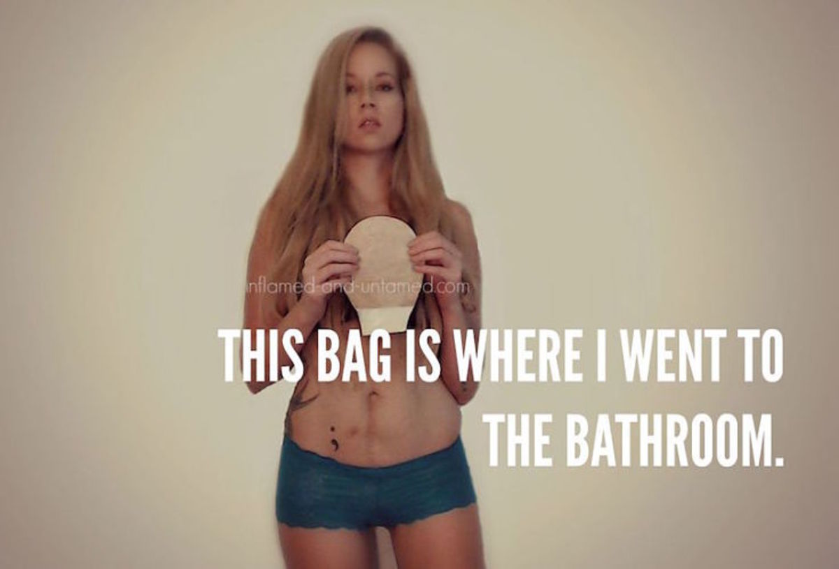 Sara Ringer holding ostomy bag