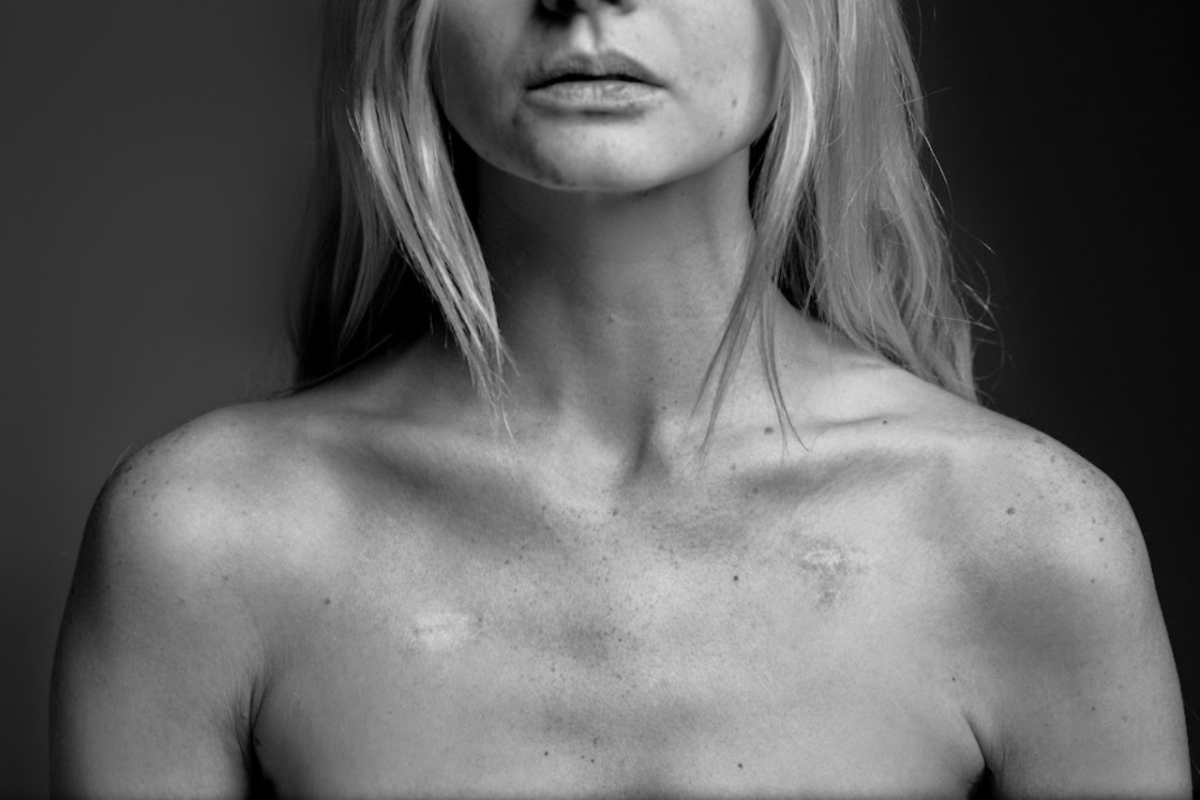 Scars on my chest from implanted port-a-caths.