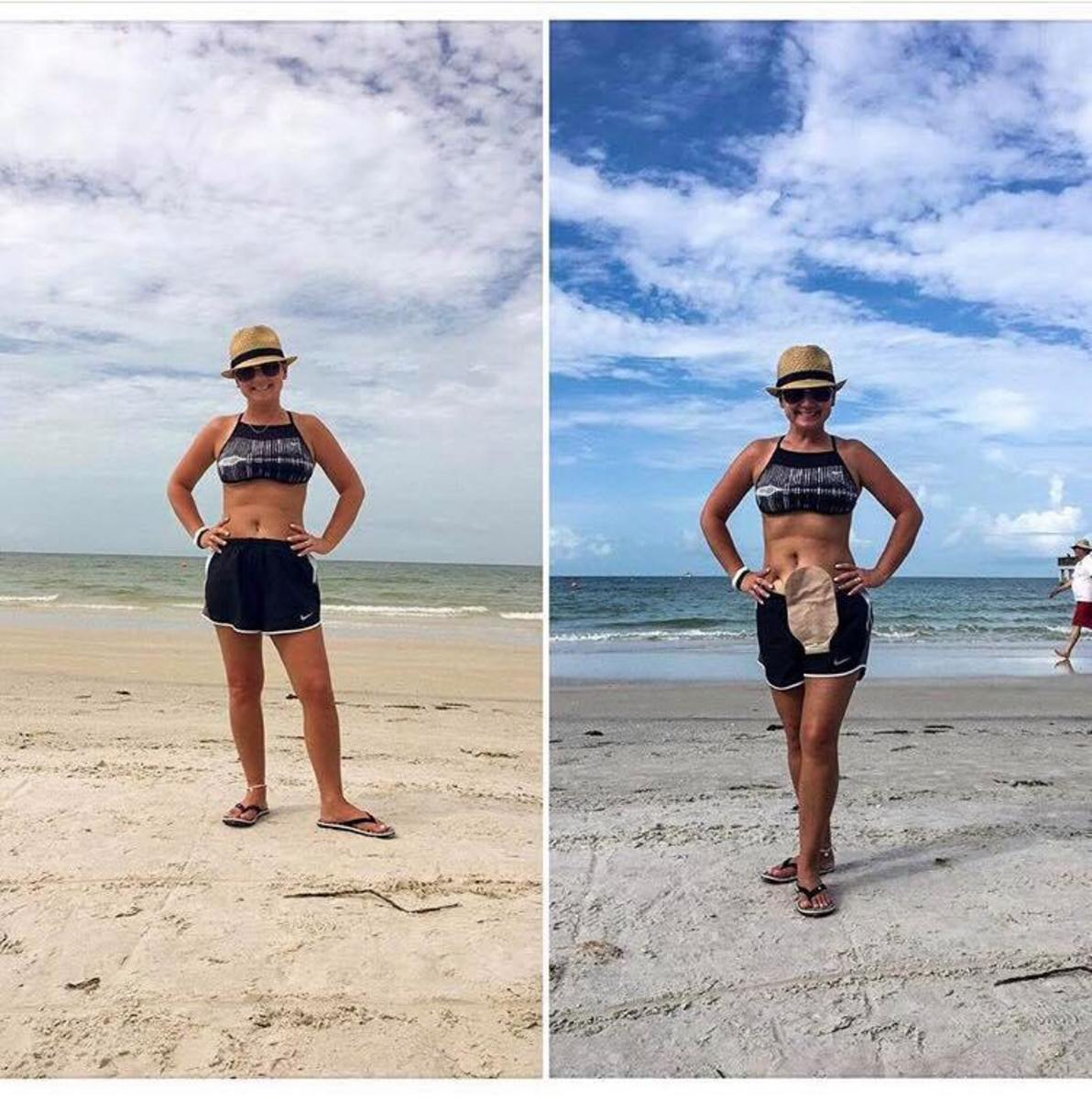 Cate Luth with ostomy on the beach