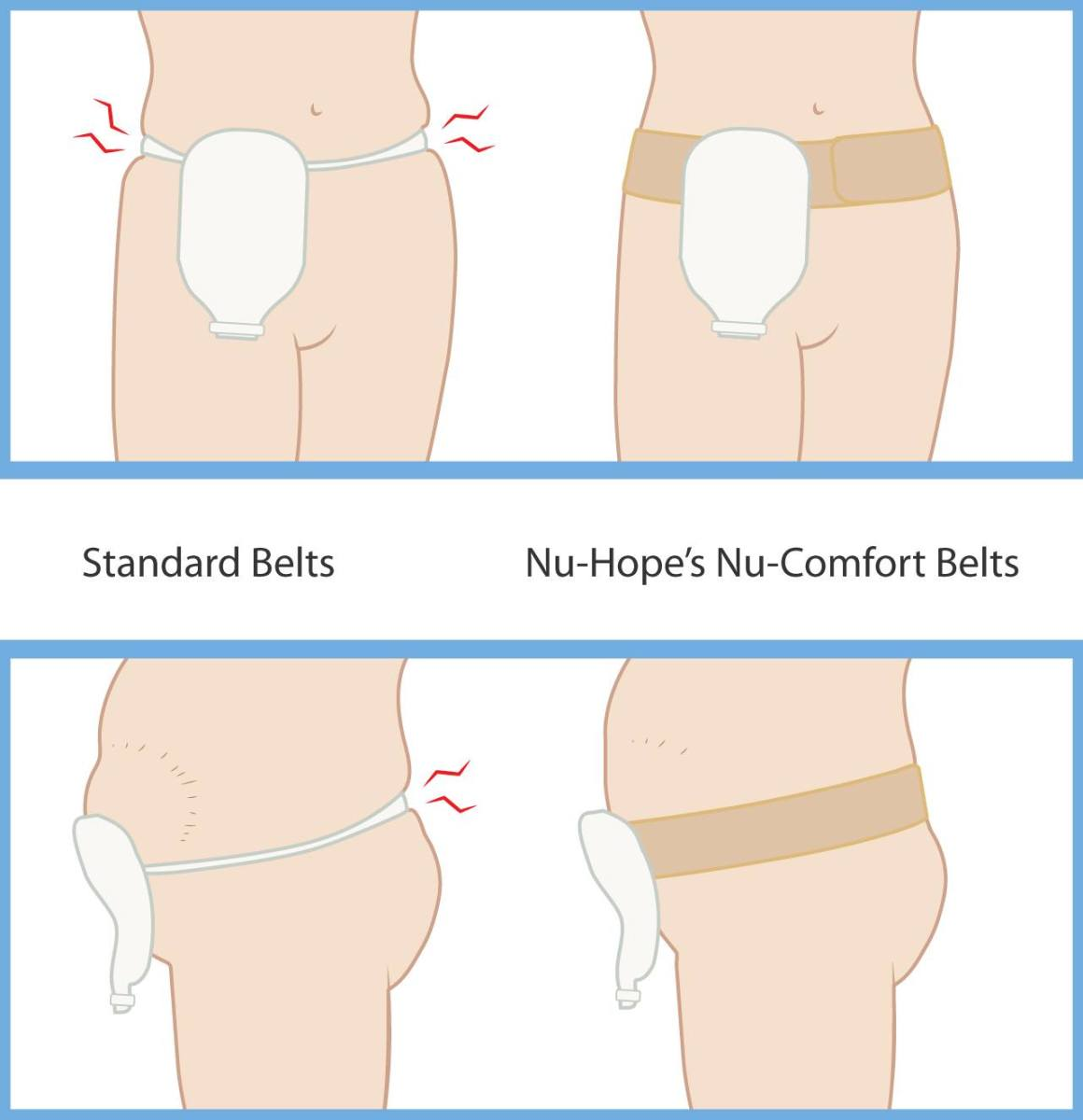 Nu-Hope Comfort Ostomy Belt illustration
