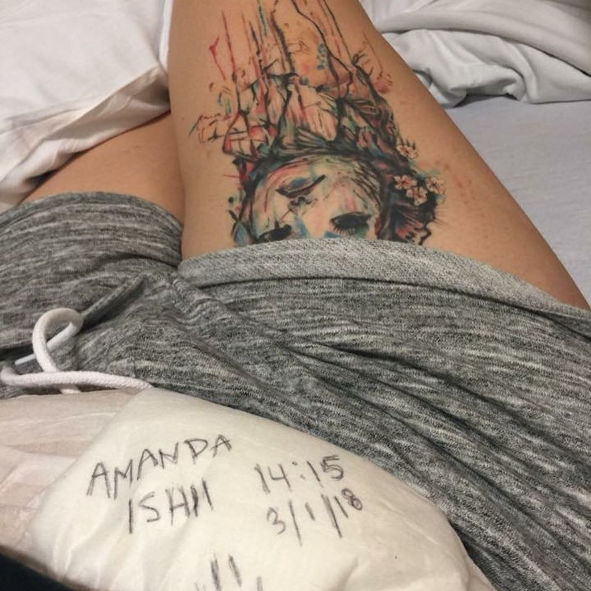 girl with tattoo on leg and ostomy bag